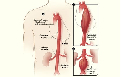Aneurisma aortis