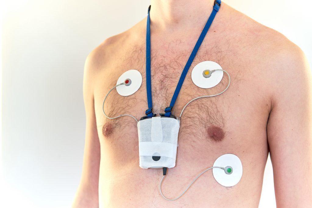 Hlektrokardiografima 2