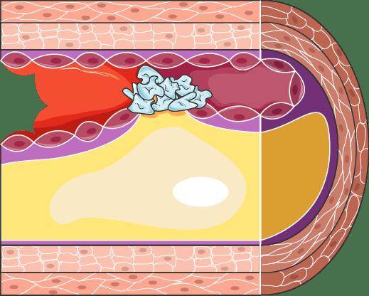 Xolisterini 5