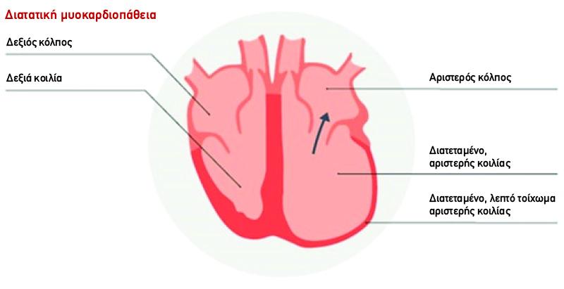 Diatatiki muokardiopatheia