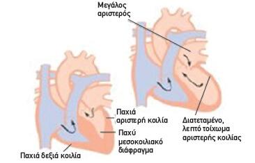 Miokardiopatheia