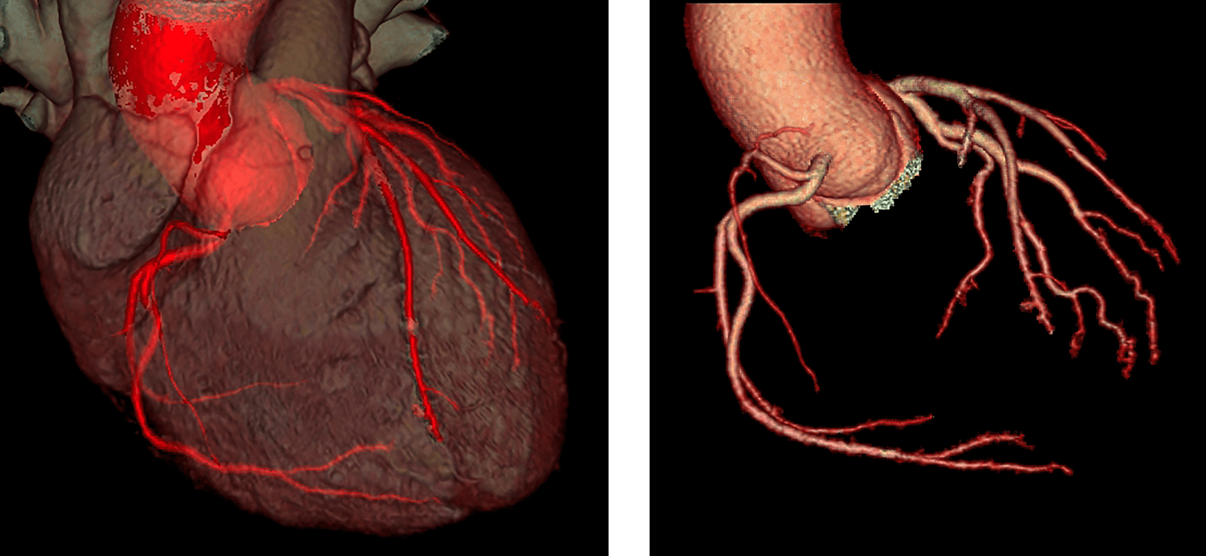 kardiologikes eksetaseis epembaseis 1